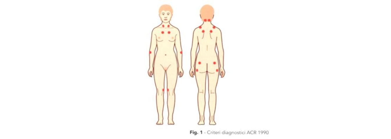 Trigger points fibromialgia